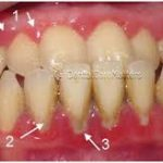 Warning Factors Indications of Gum Disease 150x150 - Strategies to Avail Emergency Tooth Extraction with No Insurance