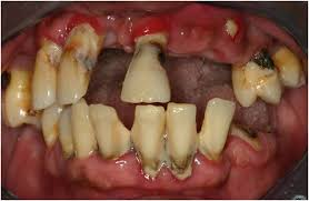 Several Side Effects of Diet to Oral Health