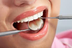 What Triggers Tooth Discoloration