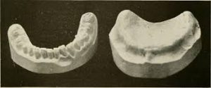 Facts to Learn from Wisdom Teeth Extraction