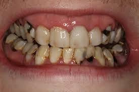 Deeply Rooted Details of Periodontal Disease