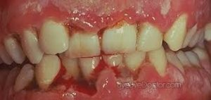 Dental Perils of Having Trench Mouth 300x142 - Dental Perils of Having Trench Mouth