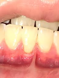 Erosive Facts of Enamel Tooth Erosion2 - Erosive Facts of Enamel & Tooth Erosion
