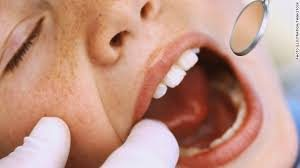 Common Dental Problems to Kids 300x168 - Common Dental Problems to Kids