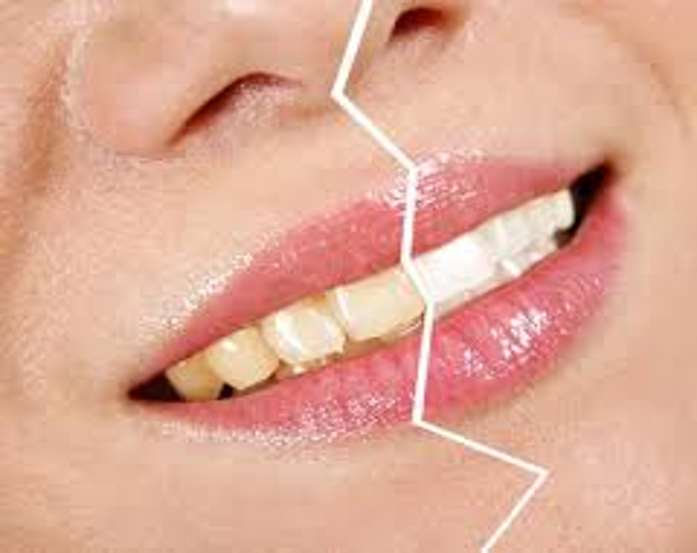 Detrimental Effects of Toothpaste2 - Detrimental Effects of Toothpaste